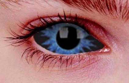 Beispiel einer Sclera Kontaktlinse