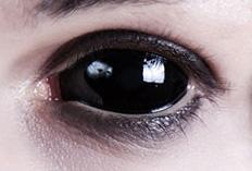 Sclera Kontaktlinsen Beispiel