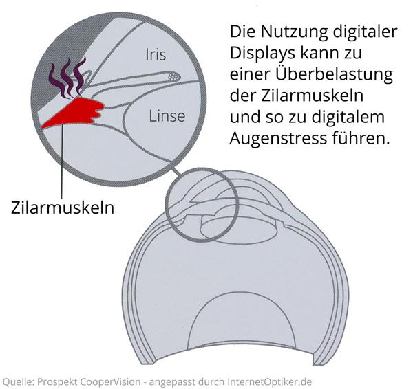 Digitaler Augenstress entsteht u.a. durch Überbelastung des Zilarmuskels